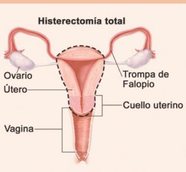 ¿Qué es una histerectomía? La cirugía a la que se sometió la madre de Cristina.